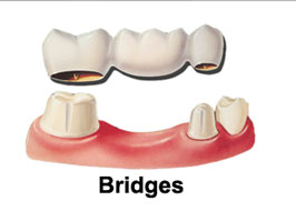 Crowns_Bridges_2